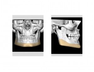 Vertical Lengthening Jawline Implant Design Dr Barry Eppley Indianapolis