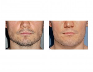 Vertical Lengthening Jawline Implant result front view