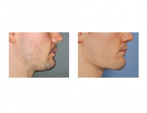 Vertical Lengthening Jawline Implant result side view