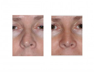 Airway Preserving Rhinoplasty Dr Barry Eppley Indianapolis front view