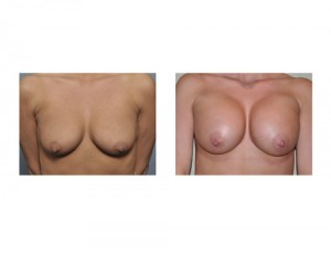 Breast Augmentation without Lift result front view