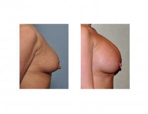 Breast Augmentation without Lift result side view