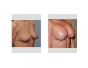 Breast Augmentation without lift result oblique view
