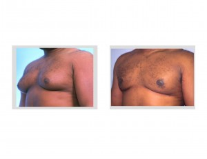 Gynecomastia  Reduction Dr Barry Eppley Indianapolis