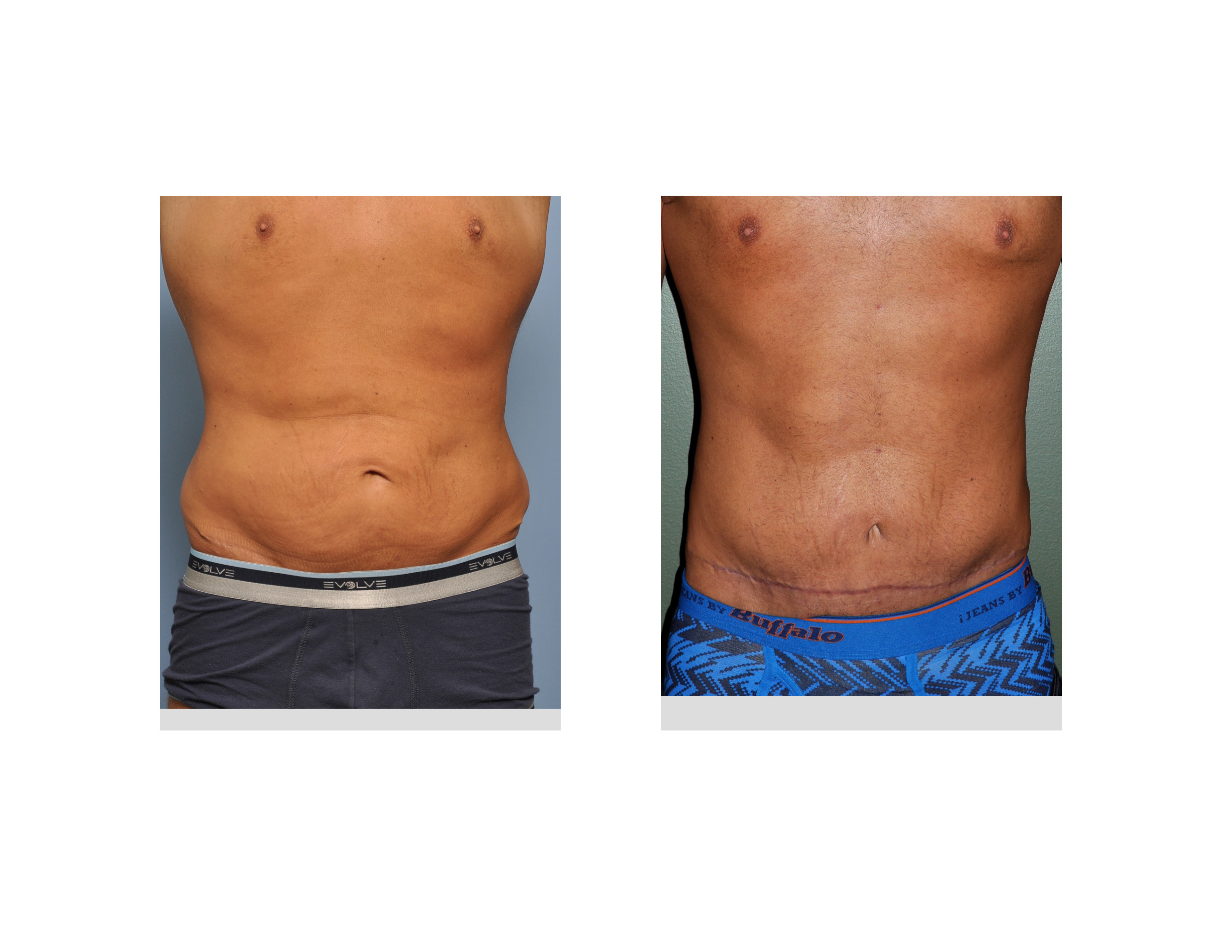 187 Blog Archivecase Study Male Tummy Tuck After Weight Loss