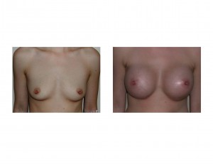 Breast Augmentation (Easy Aug) Indianapolis Dr Barry Eppley