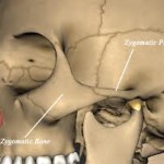 Cheek Bone Anatomy Dr Barry Eppley Indianapolis
