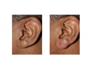Earlobe Lengthening by Injection Dr Barry Eppley Indianapolis