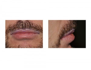 Male Lip Advancement markings before surgery Dr Barry Eppley Indianapolis
