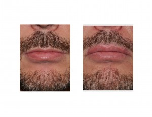 Male Upper Lip Advancement result fronkt view