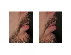 Male Upper Lip Advancement result side view