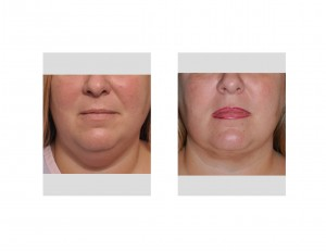 Neck Liposuction result front view