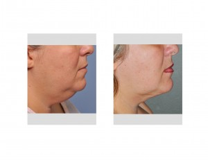Neck Liposuction result side view