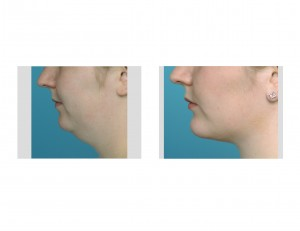 Neck Liposuction with Chin Implant Dr Barry Eppley Indianapolis