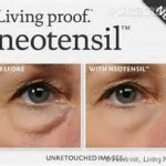Neotensil Living Proof Dr Barry Eppley Indianapolis