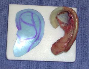 Rib Graft Ear Reconstruction Dr Barry Eppley Indianapolis