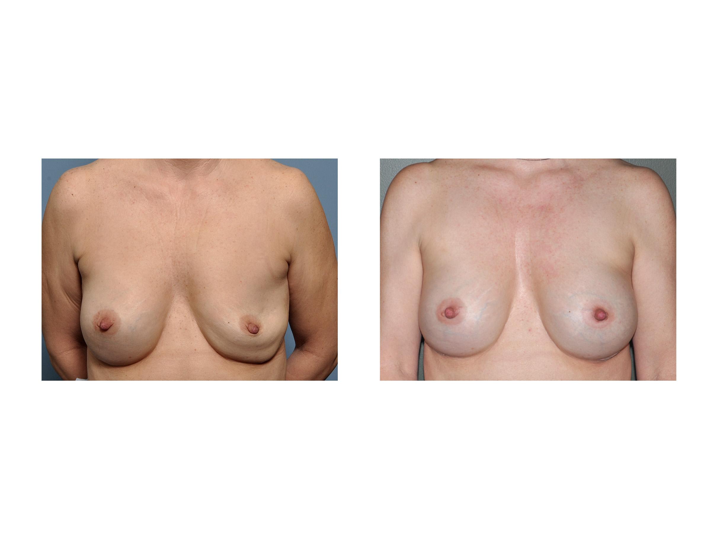 Deflated saline breast sorry