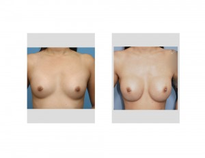 Asian Female Breast Augmentation result front view Dr Barry Eppley Indianapolis