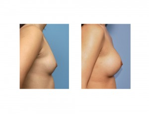 Asian Female Breast Augmentation result side view Dr Barry Eppley Indianapolis