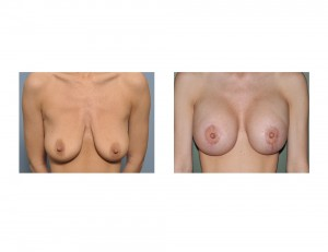 Breast Lift with Implants result front view Dr Barry Eppley Indianapolis