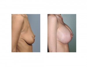 Breast Lift with Implants result side view Dr Barry Eppley Indianapolis