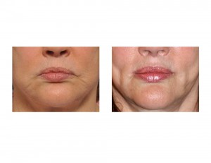 Corner of Mouth Lift with Perioral Mound Liposuction Dr Barry Eppley Indianapolis