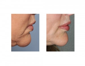 Corner of Mouth Lift with Perioral Mound Liposuction fersult side view Dr Barry Eppley Indianapolis