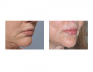 Corner of Mouth Lift with Perioral Mound Liposuction result oblique view Dr Barry Eppley Indianapolis