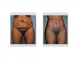 Extended Tummy Tuck results front view Dr Barry Eppley Indianapolis