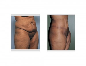 Extended TummyTuck results oblique view Dr Barry Eppley Indianapolis