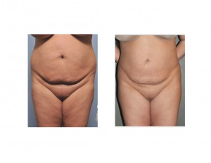 Abdominal and Flank Liposuction result Dr Barry Eppley front view
