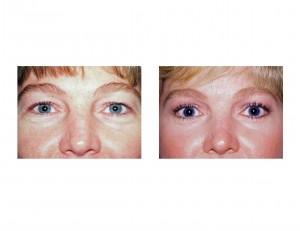 Blepharoplasty (Eyelid Tuck) Dr Barry Eppley Indianapolis
