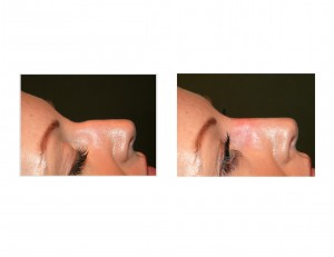 Injectable Rhinoplasty with Radiesse Dr Barry Eppley Indianapolis