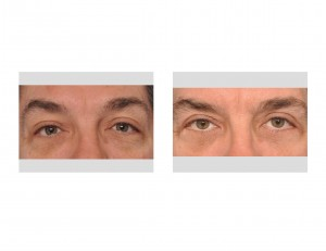 Male Blepharoplasty result front view Dr Barry Eppley Indianapolis