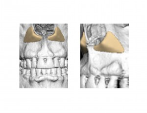 Paranasal Implant Designs Dr Barry Eppley Indianapolis