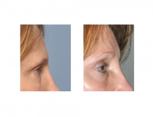 Pretrichial Browlift result side view Dr Barry Eppley Indianapolis