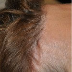 Pretrichial Hairline Scar Dr Barry Eppley Indianapolis