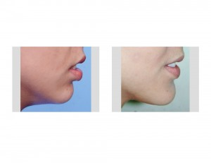 Sliding Genioplasty Chin Augmention result side view Dr Barry Eppley Indianapolis