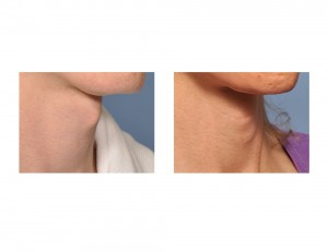 Transgender Tracheal Shave result oblique view Dr Barry Eppley Indianapolis