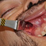 silicone paranasal implant surgical placement