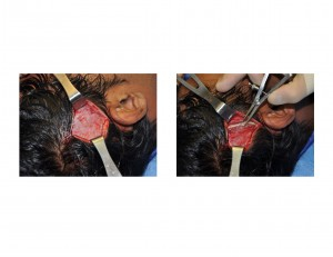 temporal muscle exposur tthickness