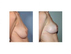 Breast Lifts Make Breast Appear Smaller Dr Barry Eppley Indianapolis