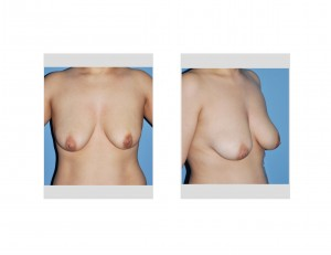Breast Sagging and Involution Dr Barry Eppley Indianapolis
