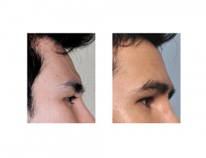 Custom Forehead Implant result side view Dr Barry Eppley Indianapolis