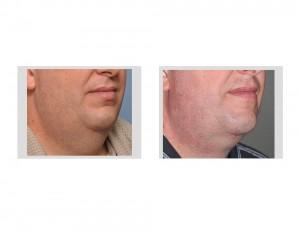 Large Neck Liposuction result oblique view