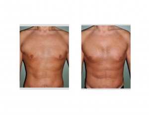 Pectoral Implants after Weight Loss result front view Dr Barry Eppley Indianapolis