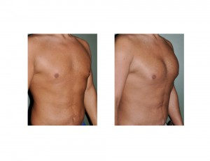 Pectoral Implants after Weight Loss result oblique view Dr Barry Eppely Indianapolis