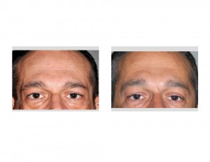 Temple Implants in Facial Lipoatrophy result front view Dr Barry Eppley Indianapolis