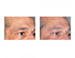 Temples Implants in Facial Lipoatrophy result oblique view Dr Barry Eppley Indianapolis