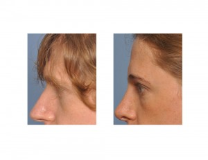Transgender Brow Bone Reduction result side view Dr Barry Eppley Indianapolis